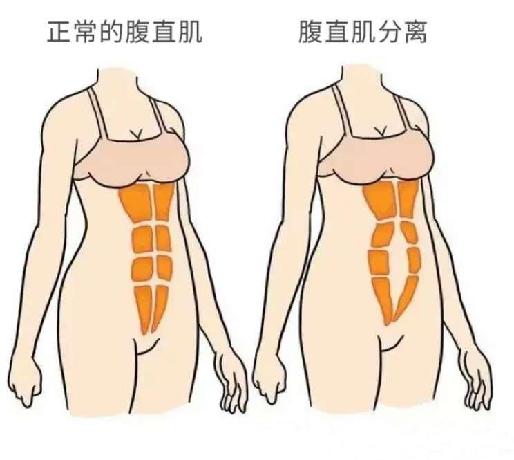 正常的腹直肌和腹直肌分离展示图